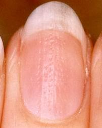 rippled nail