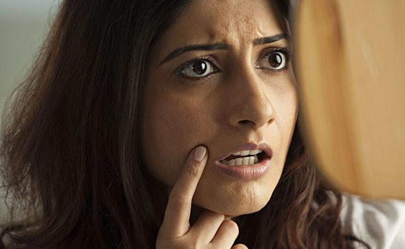 ড্রাই স্কিনের যত্নে  টি ট্রি অয়েল - shajgoj.com