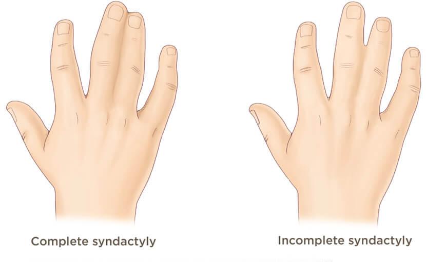 syndactyly জন্মগত ত্রুটির কারণে হতে পারে - shajgoj