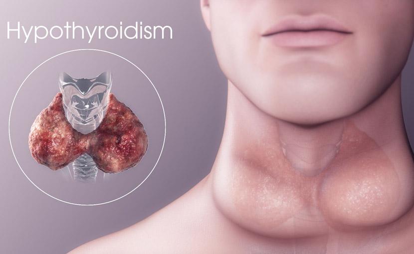 hypothyroidism জন্মগত ত্রুটির কারণে হতে পারে - shajgoj