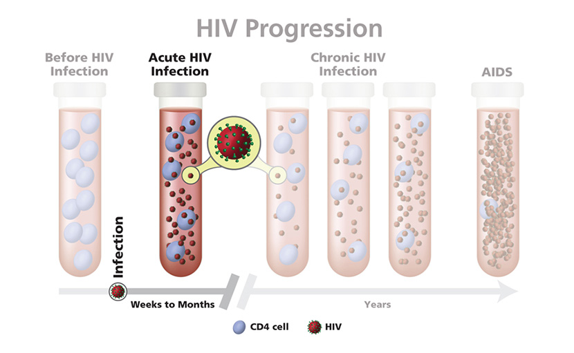 এইডস, acute HIV infection এর ছবি - shajgoj