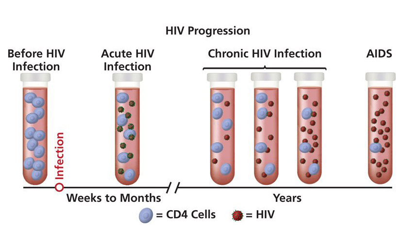 এইডস ( HIV ) এর progression এর ছবি - shajgoj
