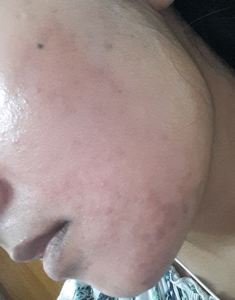 COSRX centella blemish cream ব্যবহারের আগে মুখে ব্রণ এর ছবি - shajgoj