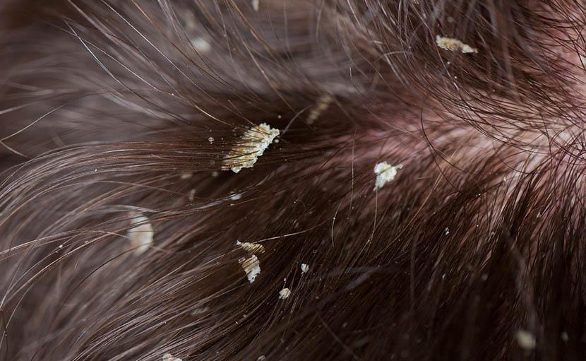 ড্রাই স্কাল্প এ ছোট ফ্লেক এর ছবি - shajgoj.com