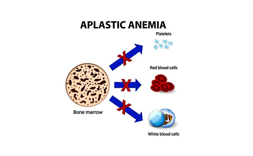 লোহিত কণিকার উৎপাদনজনিত সমস্যার কারণে এপ্লাস্টিক এনেমিয়া হয় - shajgoj