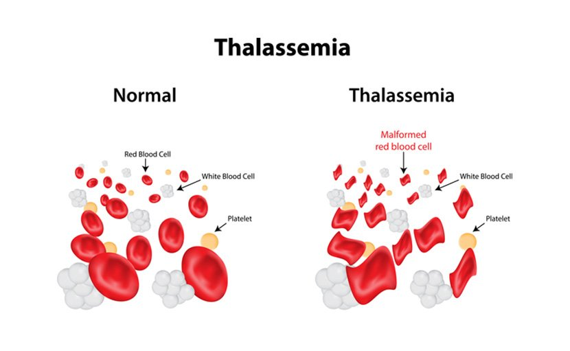 রক্তশূন্যতা বা Anemia থ্যালাসেমিয়ার কারণে হয়- shajgoj