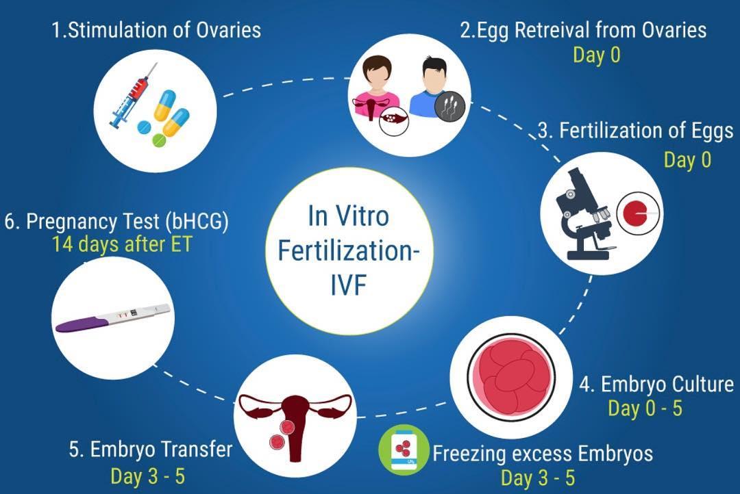 ইনফার্টিলিটি তে  IVF (টেস্ট টিউব বেবী) - shajgoj.com